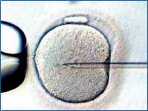 embryo transfer IVF
